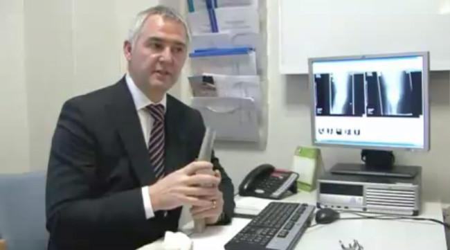 Promo videa k operaci kolene 1